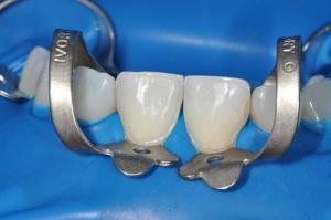Необходимо знать особенности коффердама в стоматологии
